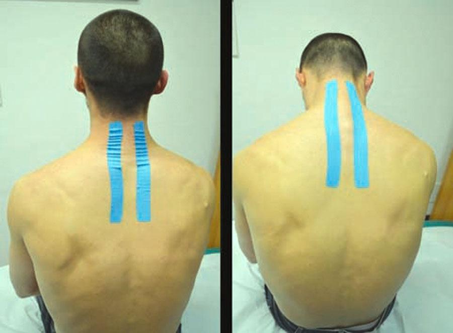 Contractura en el cuello