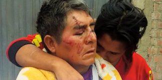 Venezolanos masacran a abuelito