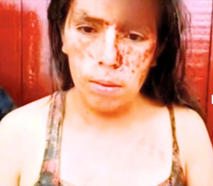 Oponentes golpean a mujer para no pagarle apuesta de S/ 5