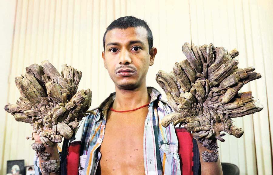 """Abul Bajandar, más conocido como """"hombre árbol"""","""