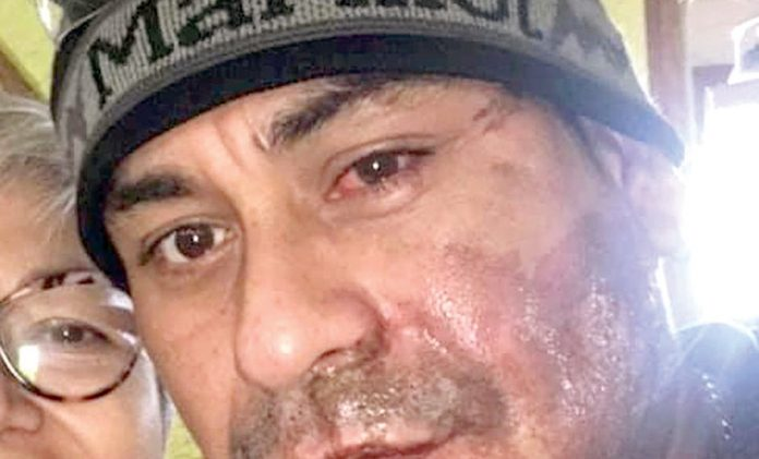 Lanzan ácido a peruano en el rostro en EE.UU